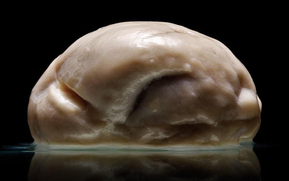 Conheça o cérebro mais estranho já descoberto pela Ciência