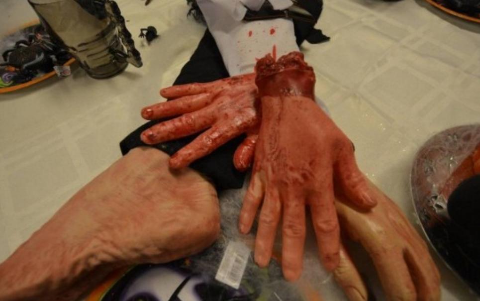 Mercado na Noruega polemiza ao vender mãos de mentirinha em bandejas