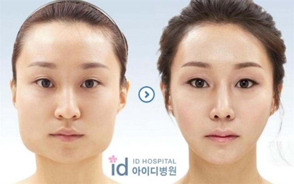 Antes e depois de plásticas em coreanos vai deixar você de queixo caído
