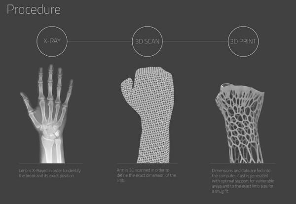 Molde impresso em 3D é substituto confortável para curar fraturas
