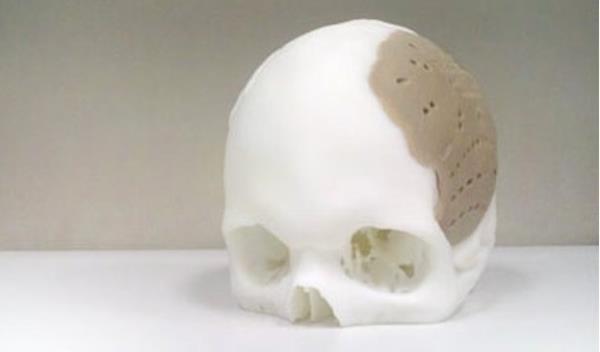 Implante feito no crânio