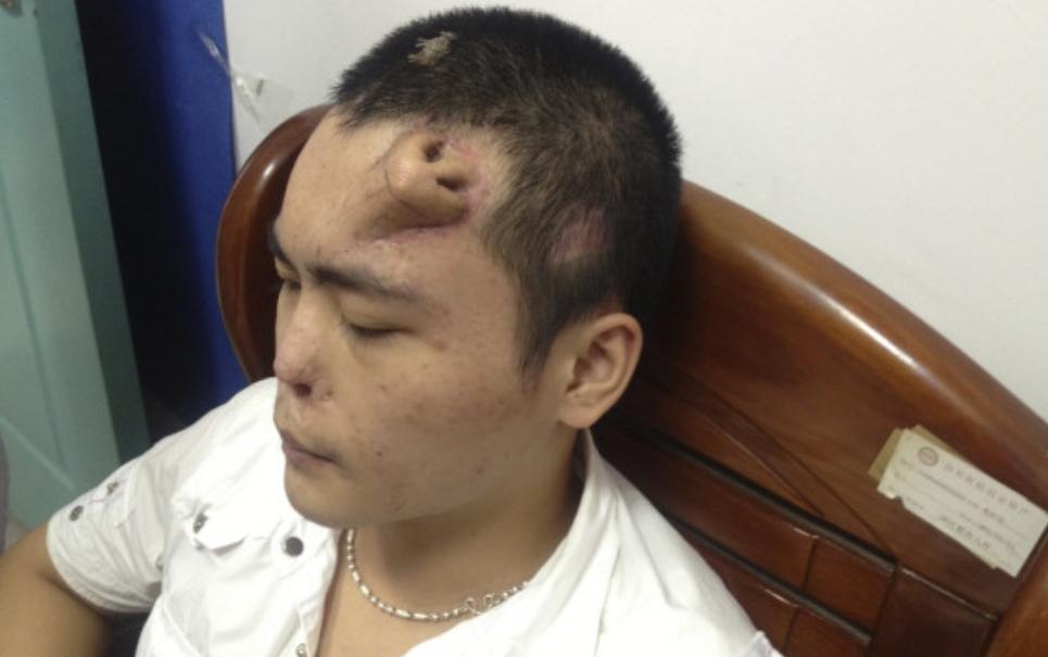 Médicos desenvolvem nariz em testa de paciente na China