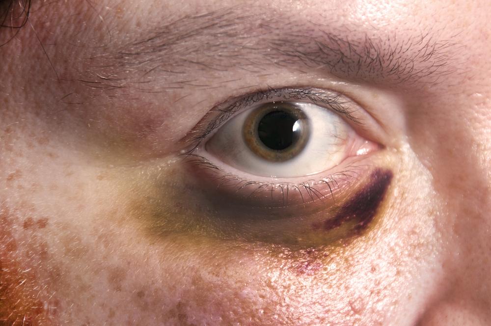 Máscara de collagenic de olhos com ouro