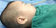 Menino de 2 anos enfia palitinho chin�s no nariz e atinge o c�rebro