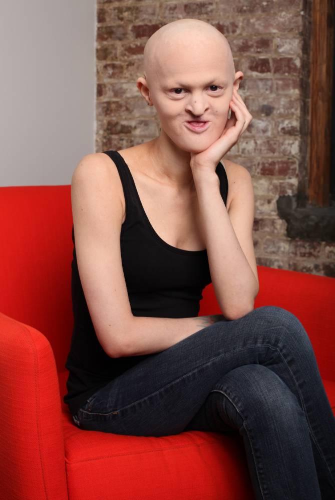 Esta mulher sofre de uma terrível doença genética e faz sucesso como modelo