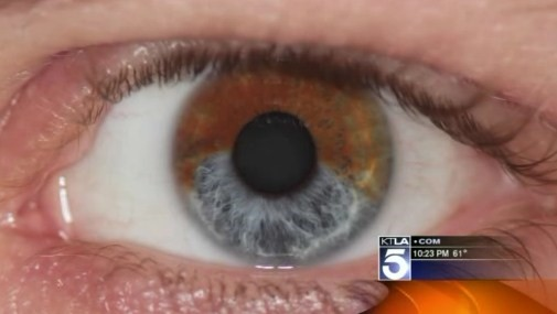Lente de contato é passado  mude a cor dos olhos com raio laser ... 186495242b