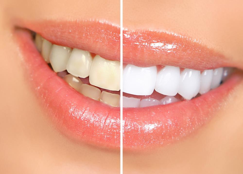 6 Coisas Que Voce Precisa Saber Sobre Cremes Dentais Mega Curioso