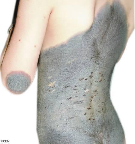 Bom nervos está sinal de cicatrização um queimando de