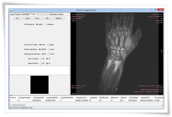 DICOM Image Viewer - Imagem 1 do software