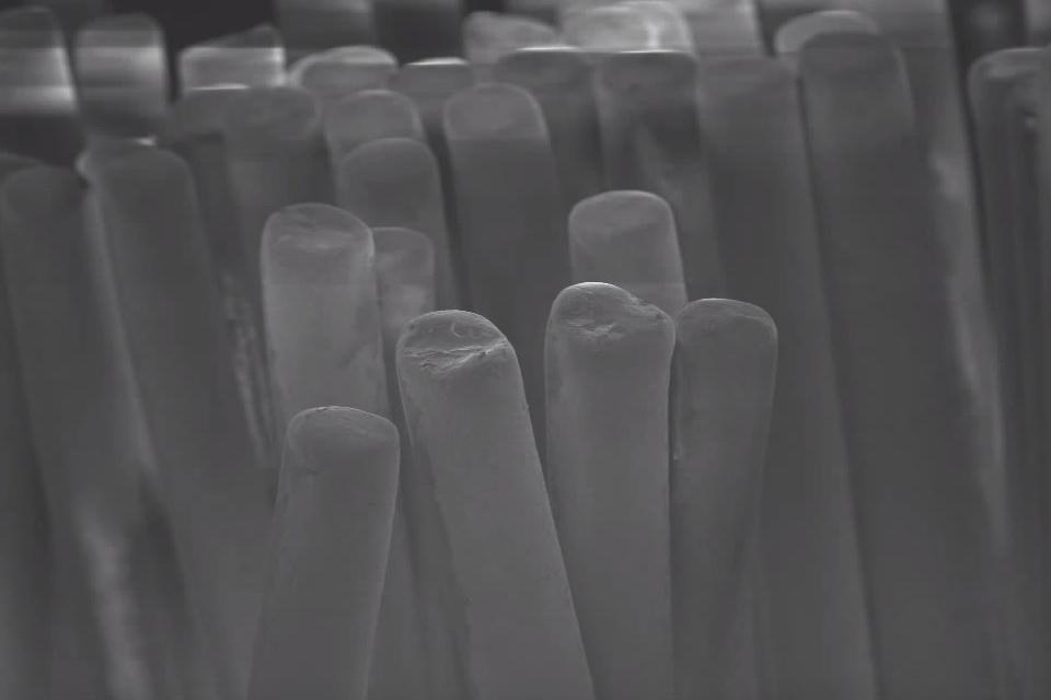 O que três meses de uso podem fazer com uma escova de dentes nova? [vídeo]