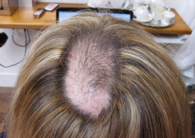 Resultado de imagem para arrancam os próprios cabelos