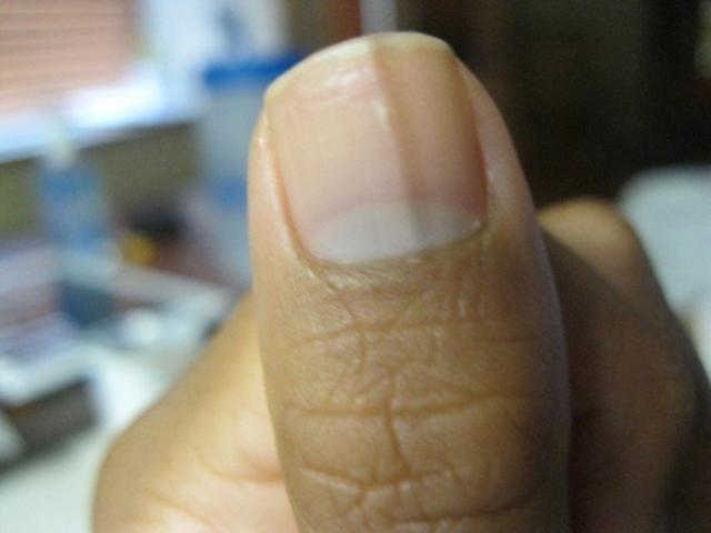 light black line on fingernail - HD1600×1200