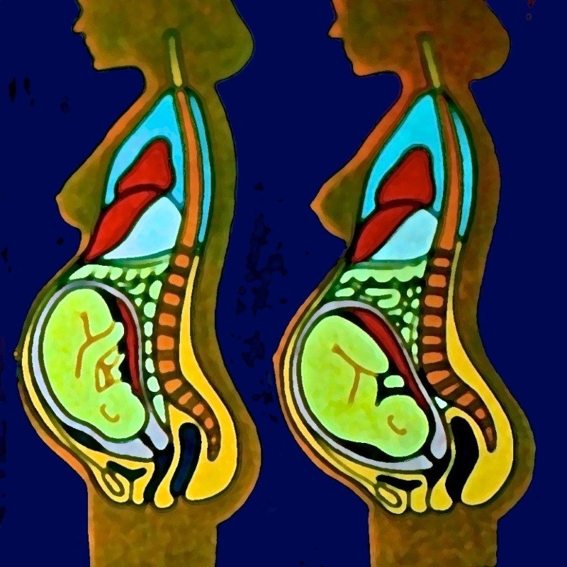 Mulheres grávidas
