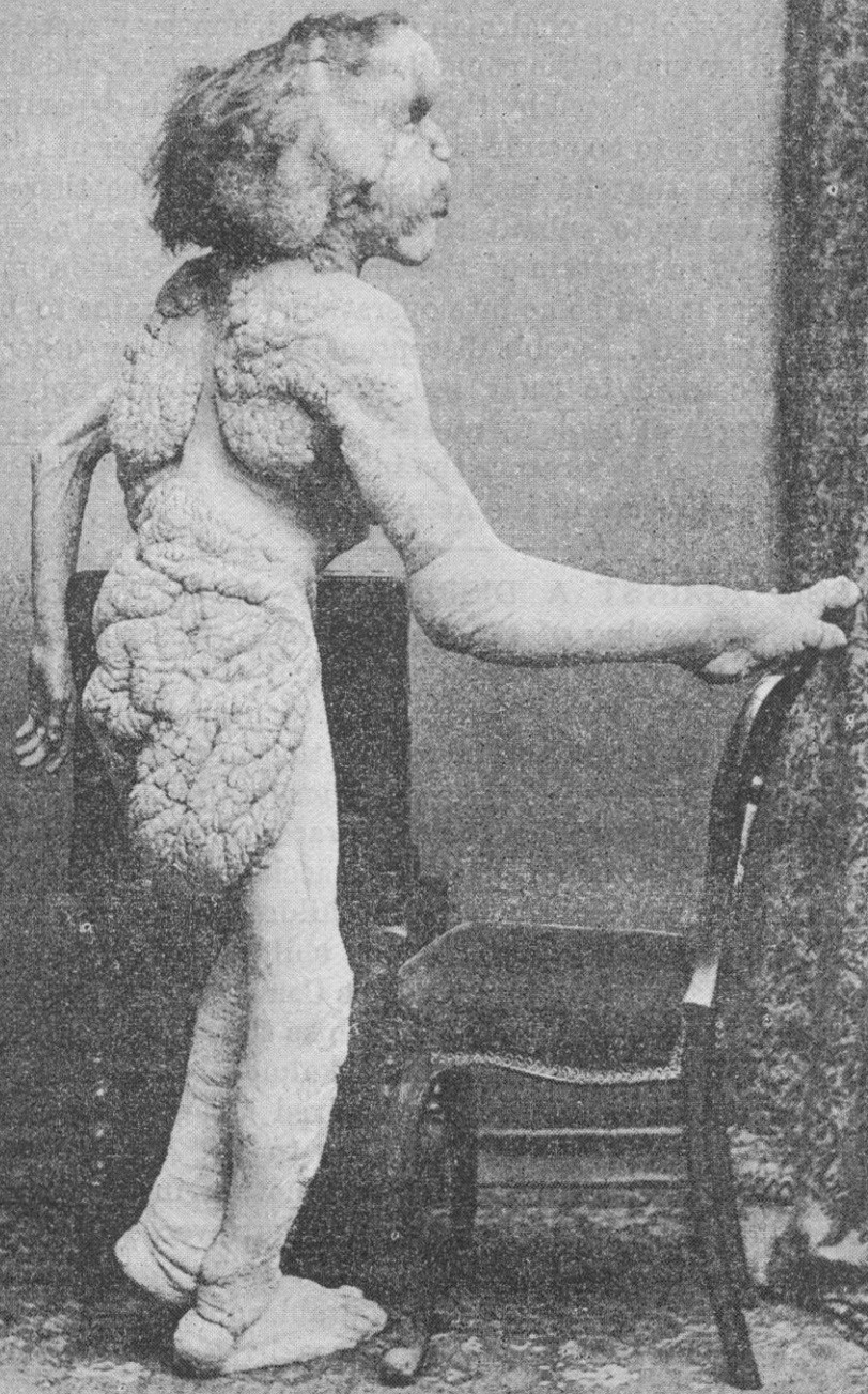 Homem Elefante Joseph Merrick