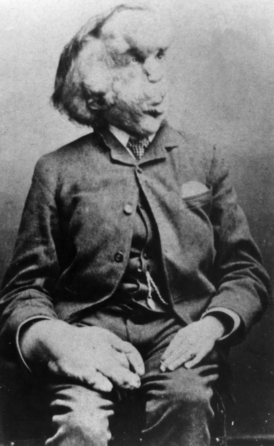 """Conheça a trágica história de Joseph Merrick, o """"Homem Elefante ..."""