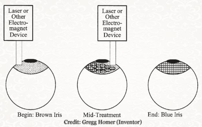 0037c0d42 cirurgia Destruição dos pigmentos de melanina dão origem a olhos claros