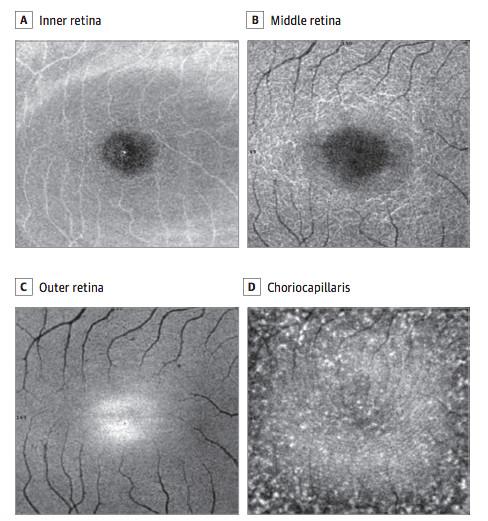 Lesão na retina