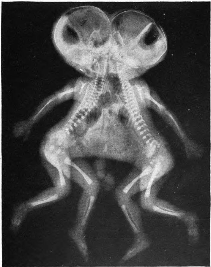 Radiografia gêmeos siameses
