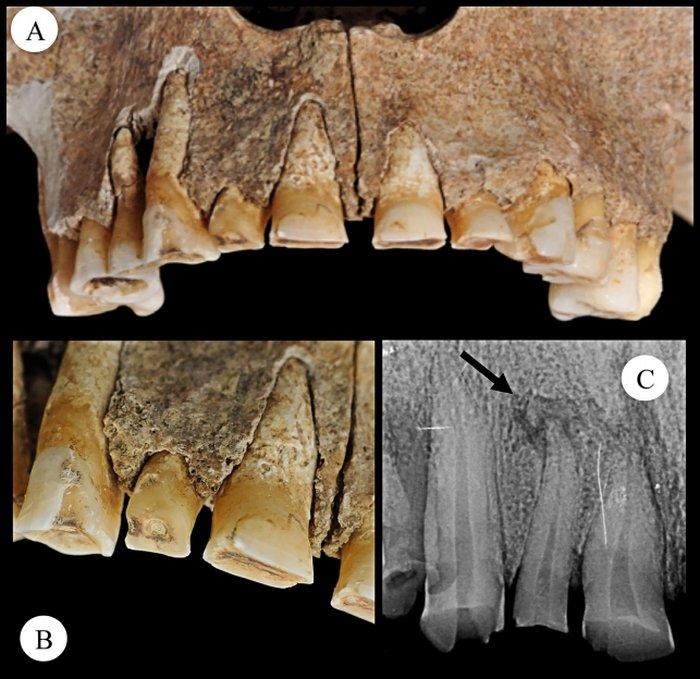 Dentes mostrando desgaste