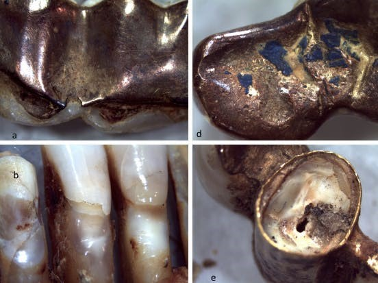 Dentes falsos