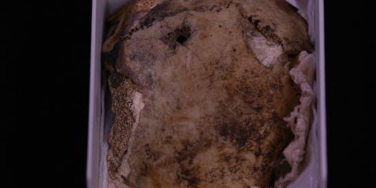 Fragmento de crânio humano