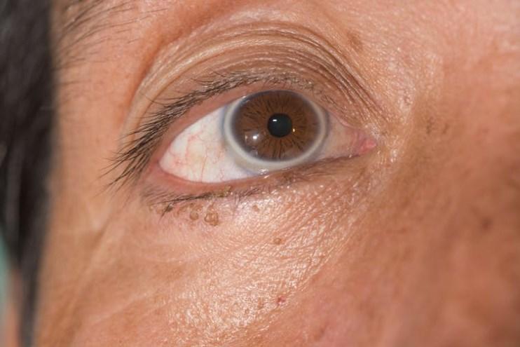 manchas de colesterol nos olhos