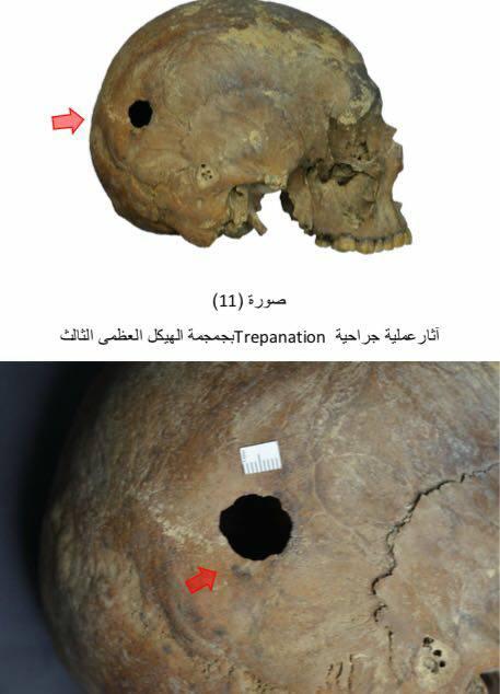 Crânio com sinal de trepanação