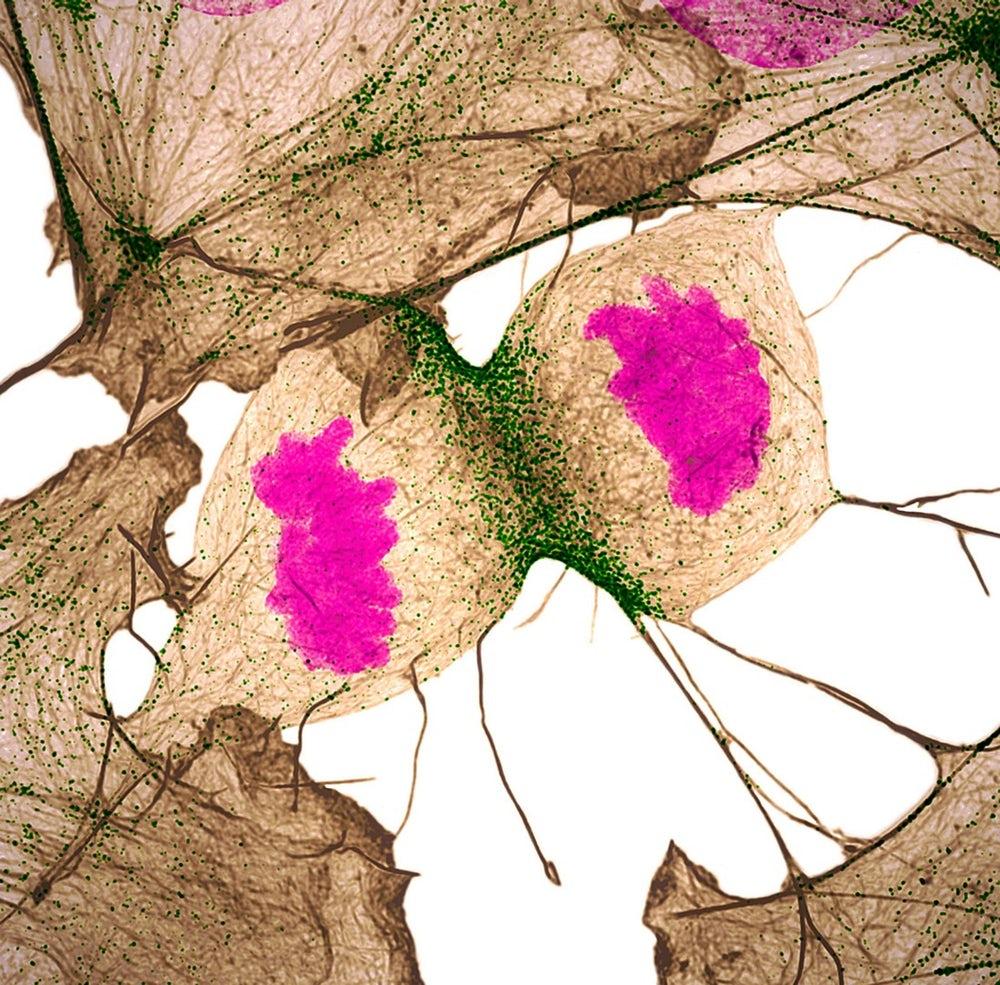Fibroblasto humano