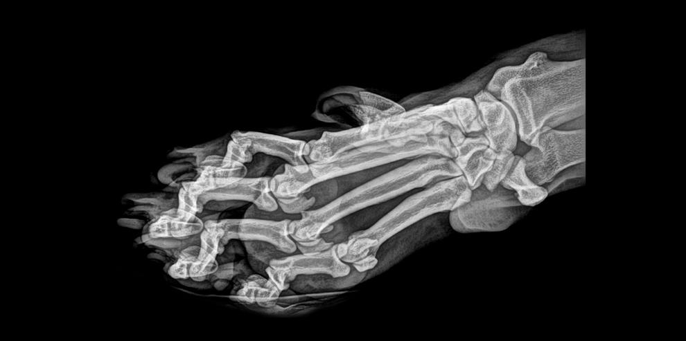 Radiografia da pata de tigre