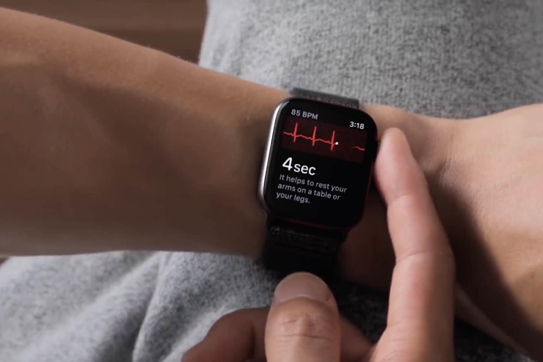 4eff78f1429 Eletrocardiograma do Apple Watch deve ser ativado com o watchOS 5.1.2