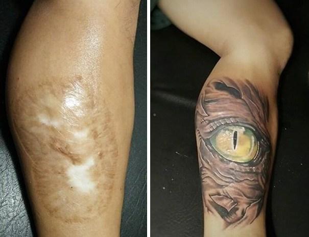 Cicatriz que virou tattoo