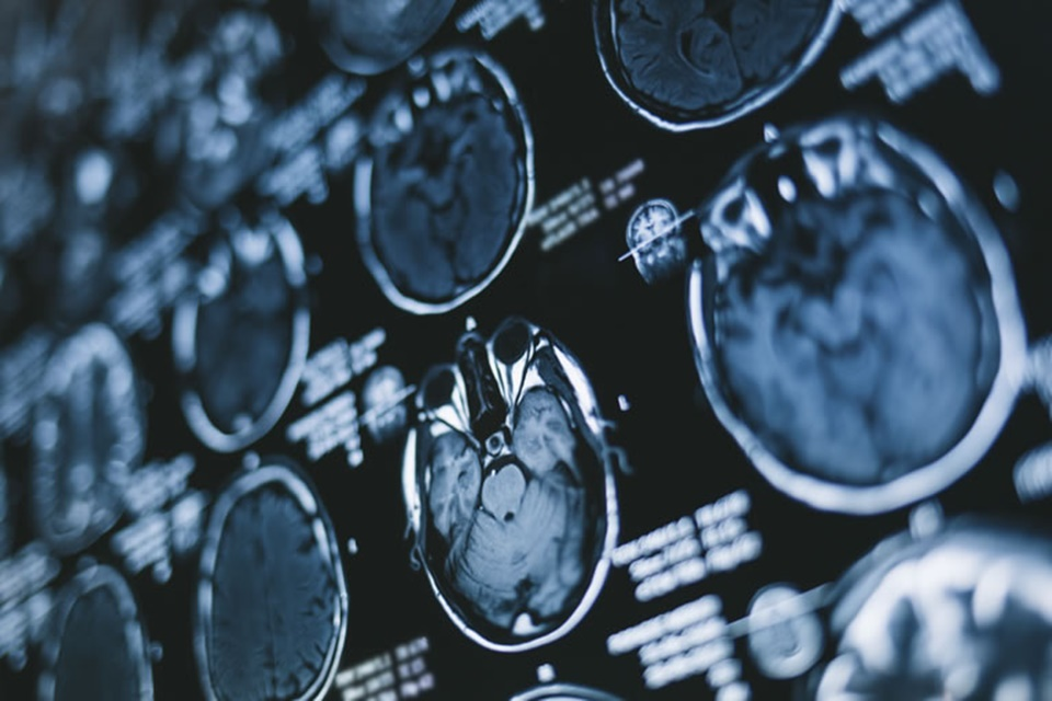 Inteligência artificial ajuda a identificar hemorragia cerebral