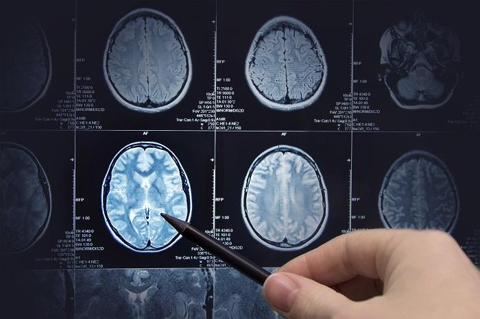imagem cerebral