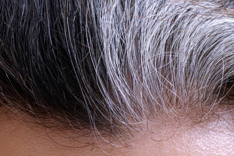Mistério de como o estresse torna os cabelos brancos é desvendado