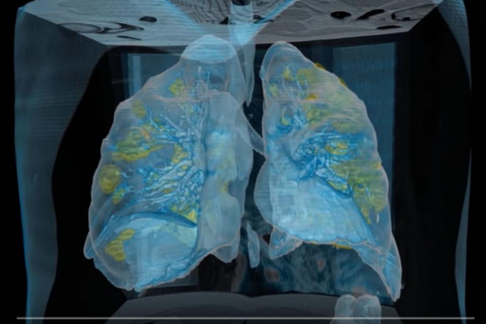 Pesquisadores usam VR para estudar danos de COVID-19 nos pulmões