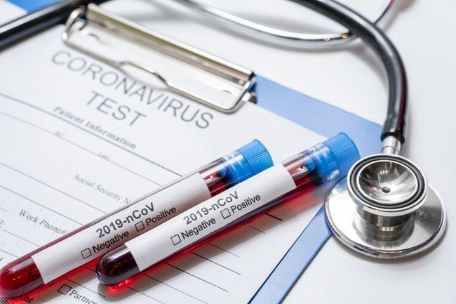 O teste rápido é fundamental para conter o avanço da doença no país.