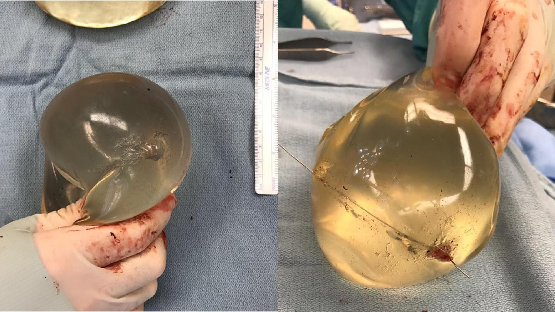 (Plastic Surgery Case Studies/Reprodução)
