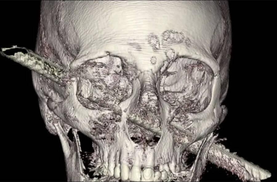 Imagem da barra de ferro atravessando a cabeça de Kamel Abdel Rahman