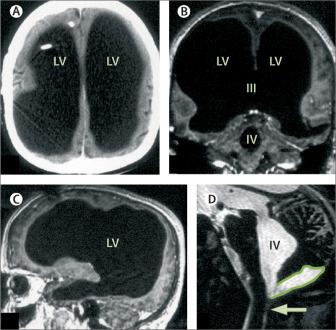 Ressonância Magnética do francês, apresentando o cérebro inundado e dando a sensação de vazio no local. (Fonte: The Lancet/Reprodução)