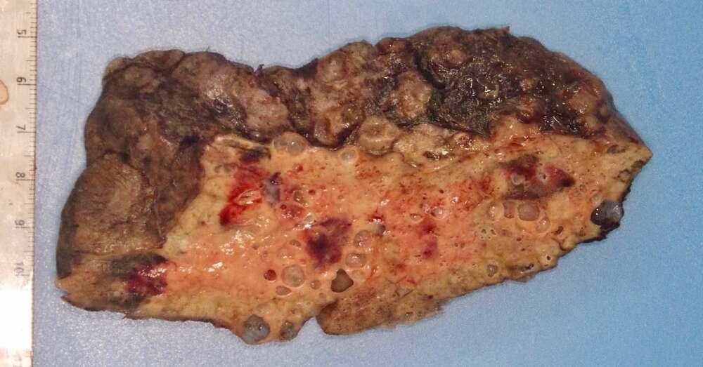 O pulmão removido de dentro da paciente que sobreviveu ao coronavírus. (Fonte: Northwestern Medicine/Divulgação)