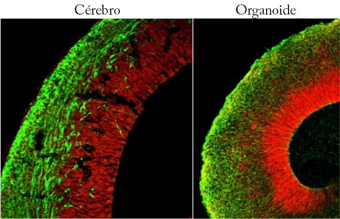 Organoides conseguem reproduzir, até certo ponto, as estruturas dos órgãos originais