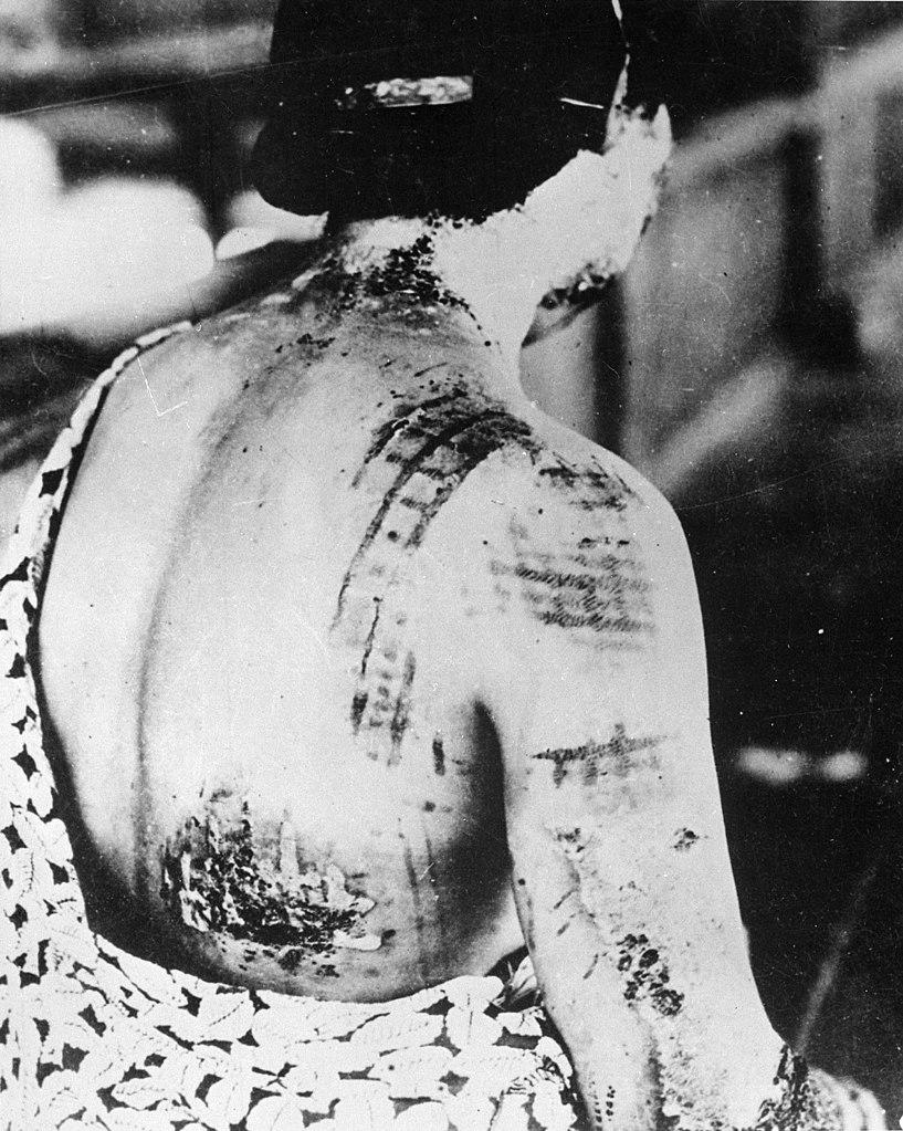As queimaduras de uma das donzelas seguiam o padrão do kimono que ela usava quando foi atingida (Fonte: Wikimedia Commons)