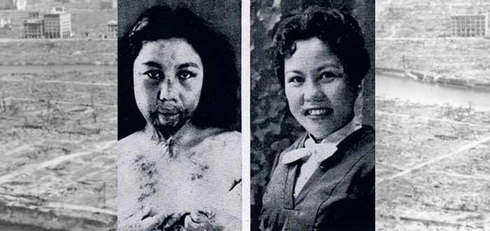 Uma moça que teve seu rosto desfigurado por queloides (Fonte: Supercurioso/Reprodução)