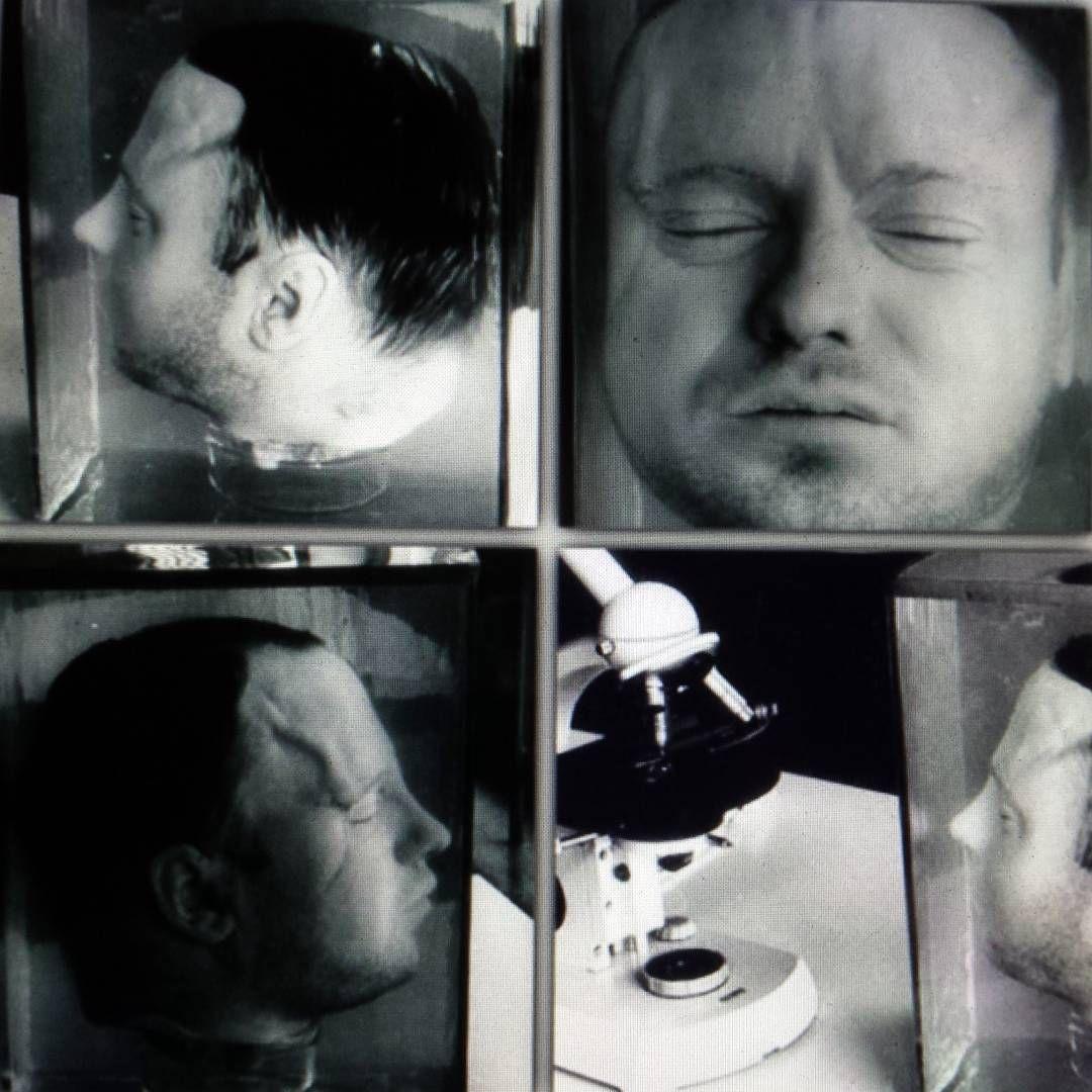 Cabeça de Haarmann após decapitação, preservada em formaldeído. (Fonte: Pinterest/Reprodução)