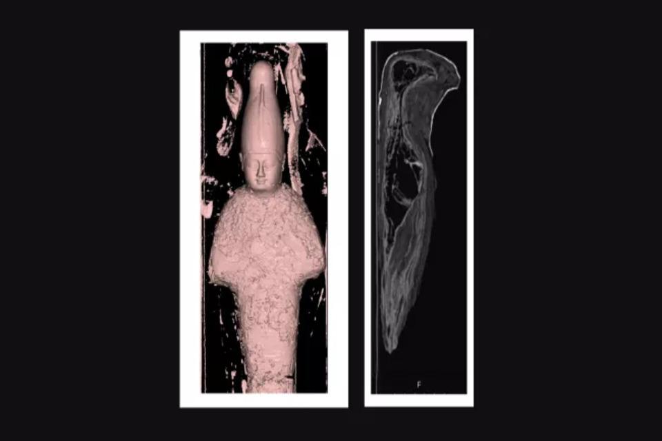 Escaneamento das múmias. (Fonte: Rambam Health Care Campus)