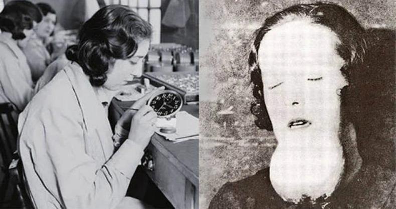 Conhecidas como Garotas do Radium, as pintoras das fábricas sofreram com as sérias consequências do envenenamento por radiação.(Fonte: Pinterest/Reprodução)