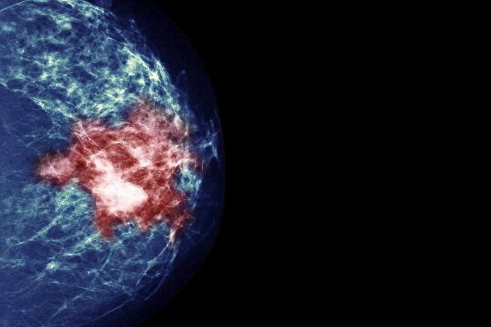 Vacina contra câncer de mama é 100% eficaz em camundongos