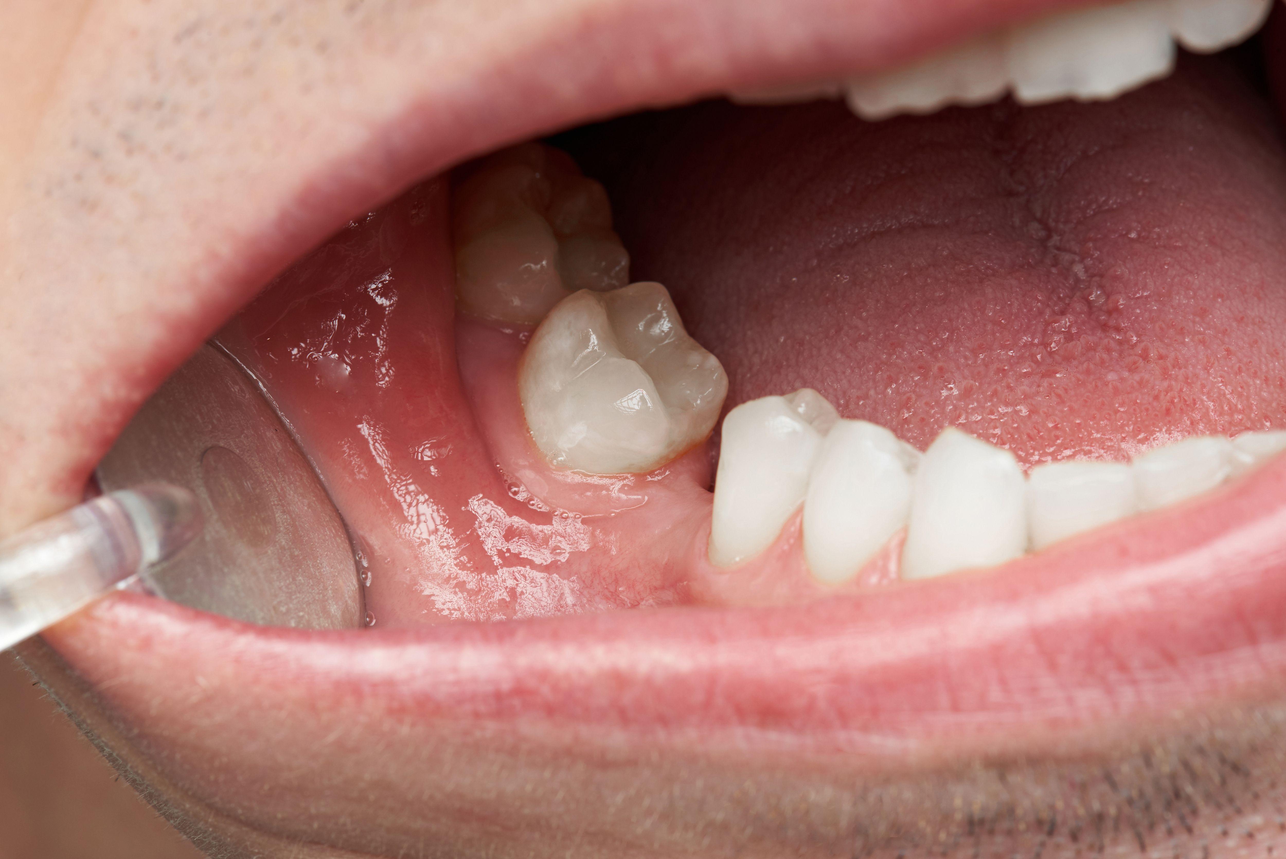 Fonte: Dowell Dental/Reprodução