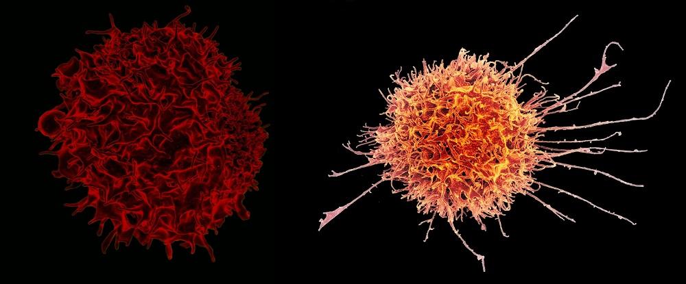 The auxiliary T lymphocytes, CD4 + (left) and cytotoxic T lymphocytes, CD8 +.