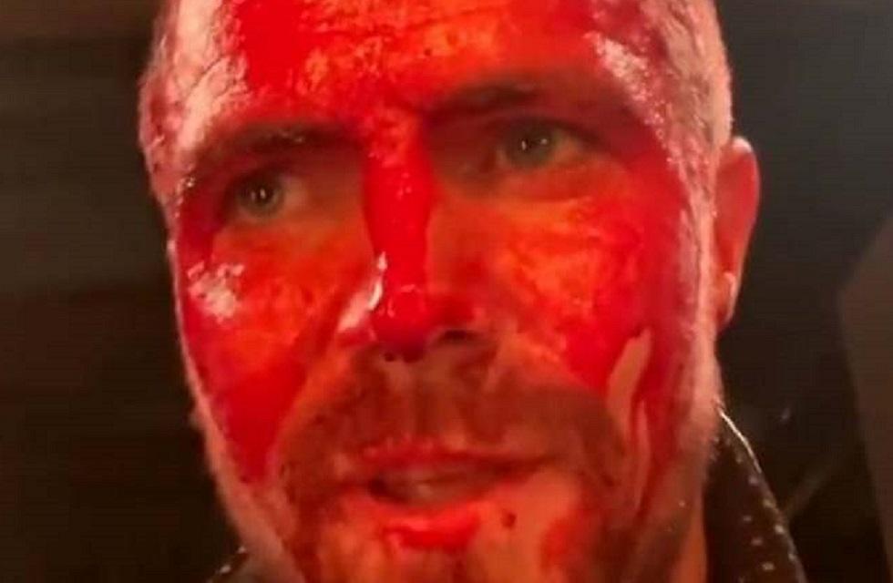 Heels: Stephen Amell aparece cheio de sangue em vídeo da série; veja!